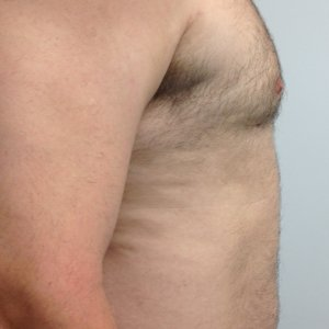 manhattan gynecomastia surgery after 4